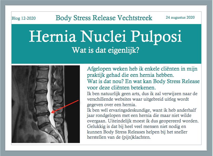 Hernia Nuclei Pulposi